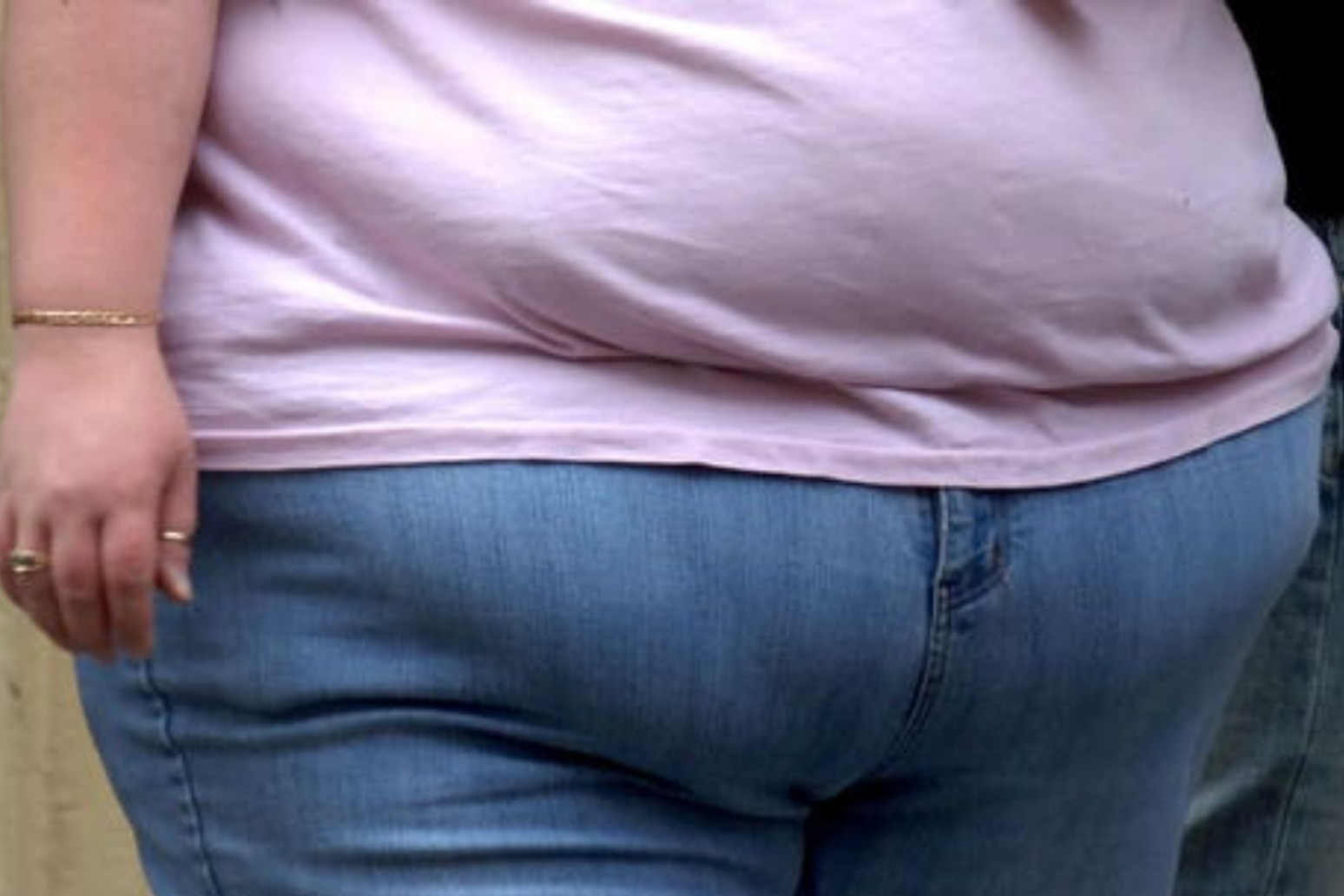 Obesity contributes to more deaths than smoking in Scotland and England – study