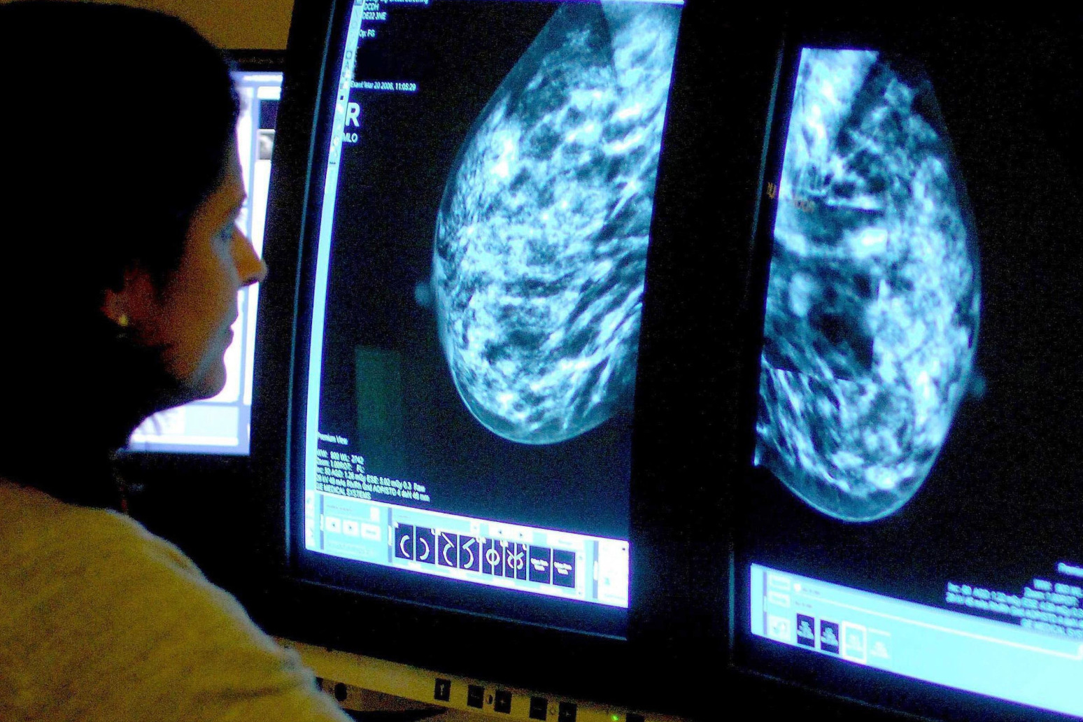Study reveals worrying lack of cancer referrals