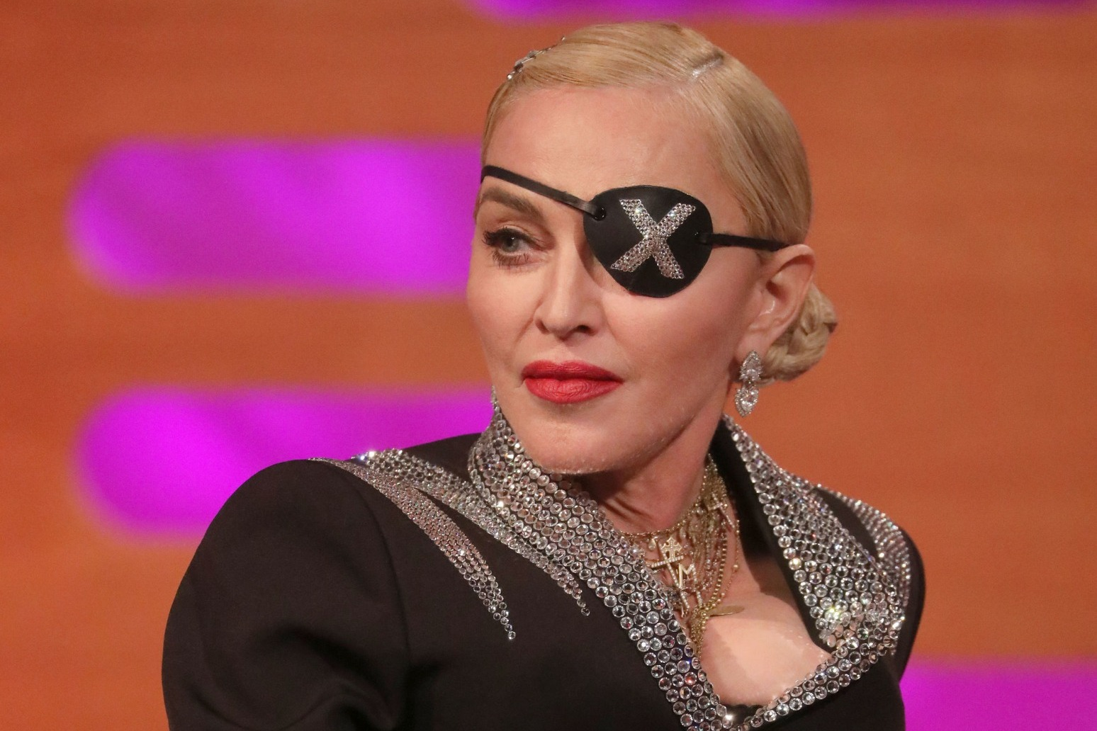 MADONNA CANCELS TOUR DATES ON MEDICAL ADVICE